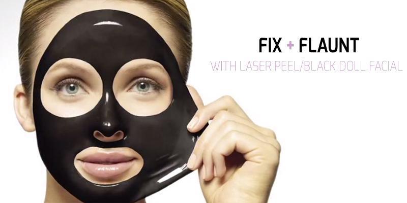 Laser-carbon-Peel